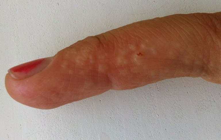 Dyshidrosis - Pictures, Causes, Prevention and Cure ...