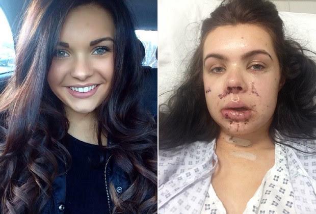 A dançarina, de 21 anos, em fotos antes e depois do ataque: segundo mãe, ela só consegue se alimentar de líquidos (Foto: Facebook e The Grosby Group)