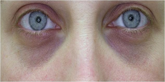 What causes dark under eye circles? - What causes this?
