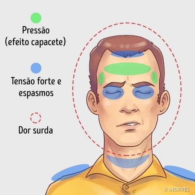 Como aliviar rapidamente 5 tipos de dores de cabeça