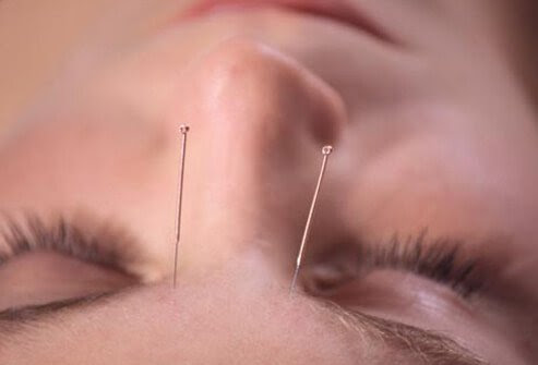 Some research suggests acupuncture may provide effective, temporary relief for chronic tension and migraine headaches.