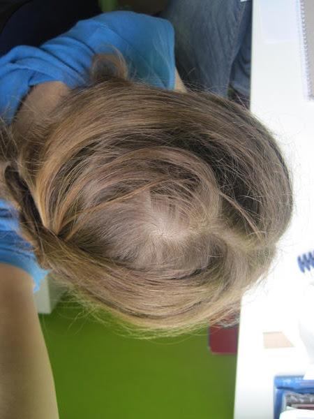Wirbel Am Hinterkopf Welche Frisur Frisur