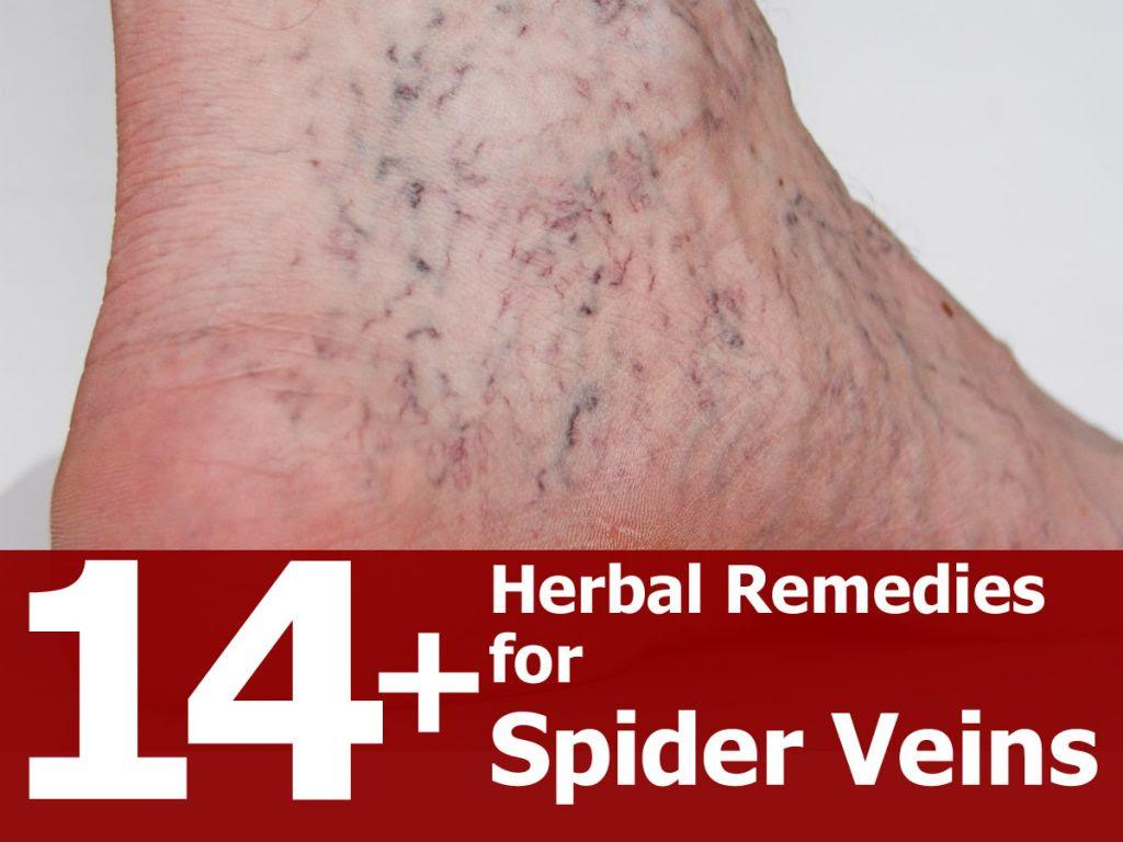 herbal-remedies-for-spider-veins-2