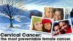 eCard: Cervical cancer