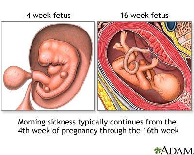 Pregnancy Symptoms At 4 Weeks - Pregnancy Symptoms