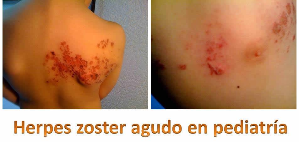 Herpes Zoster en pediatria
