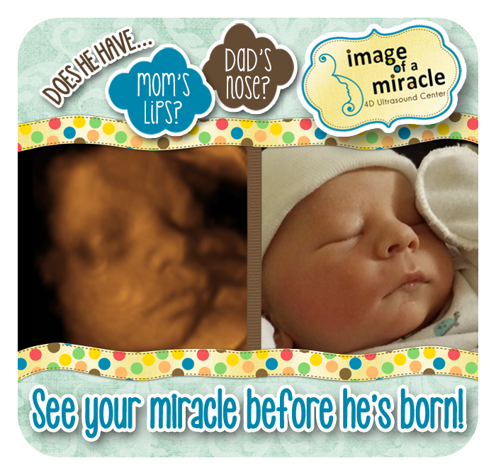 Image Of A Miracle 4d Ultrasound See Your Miracle Image Of A