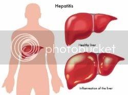 Penyebab dan gejala hepatitis