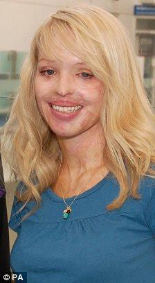 Δραματική αλλαγή: Katie έχει έρθει μέχρι τώρα στο δρόμο για να ανακτήσει και να υποστεί αρκετές διαδικασίες και τη διαδικασία για τη βελτίωση της λειτουργίας στο πρόσωπό της από την επίθεση με οξύ το 2008, ακριβώς δει το 2009 τον τρόπο μέρει μέσω της επεξεργασίας της
