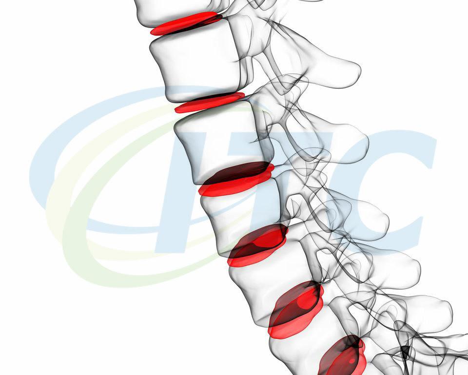 hernia de disco tratamento 01