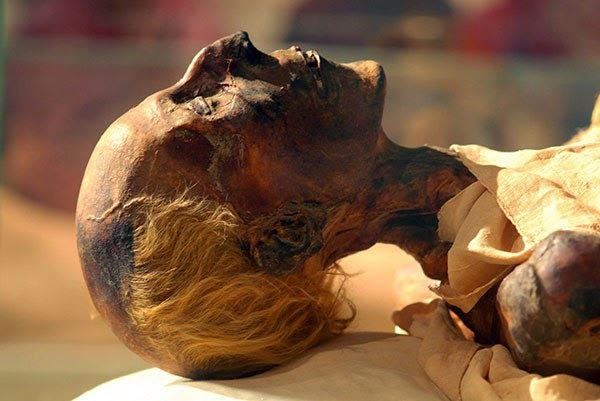 What was the reason Ramesses II survive for 93 years without modern medicine?