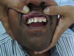 यह फिक्स दांत नहीं होता