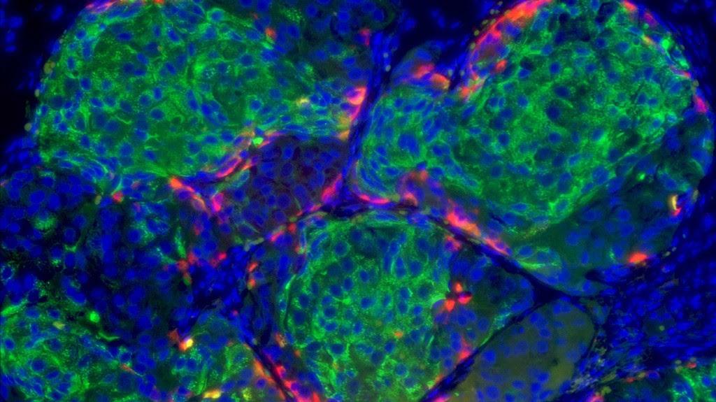 stem-cell-derived-beta-cell