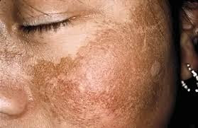 Do You Suffer From Melasma As A Woman of Color?