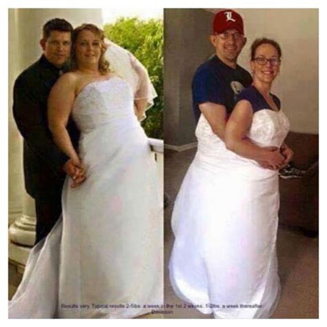 12 Before and After Weight Loss Wedding Dress Photos That