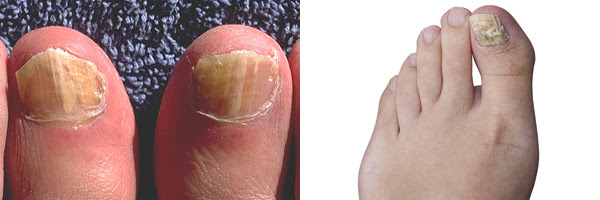 Composite image. Onychomycosis due to Trichophyton rubrum, right and left great toe. Tinea unguium.