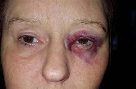 femme agressée