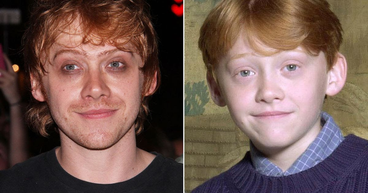 What has happened to Rupert Grint? Harry Potter star looks ...