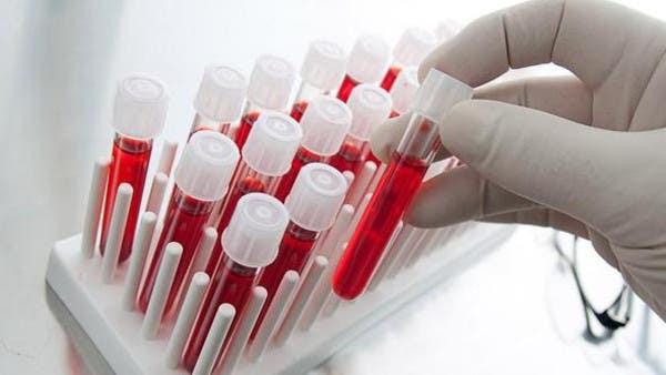 الصحة العالمية تدعو لاستخلاص أدوية من الدم ضد إيبولا