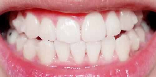 teeth 15th set`