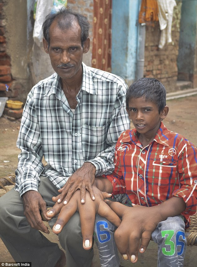 Kaleem's father Shamim, 45, (pictured together above) is worried his son will never become independent