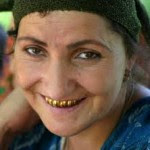 жена със златни зъби