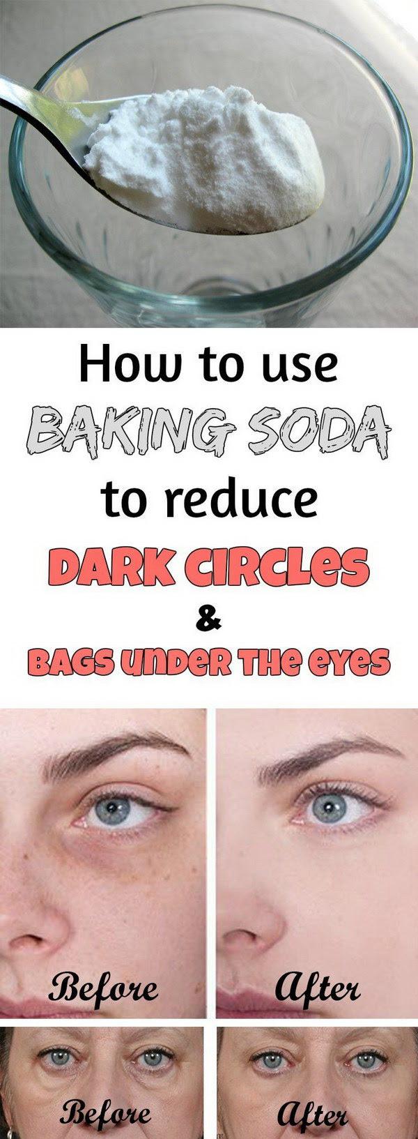 15 Ways to Get Rid of Dark Circles Under Your Eyes - Hative