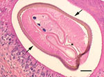 Thumbnail of Cross-section of the filarial nematode seen in the subcutaneous nodule on the thigh of a woman in France. The features, as described in the original report (1), include prominent, longitudinal ridging of the cuticle (arrows), 2 reproductive tubes, and the intestine (asterisk). Scale bar indicates 50 µm. Image courtesy of Jean-Philippe Dales.