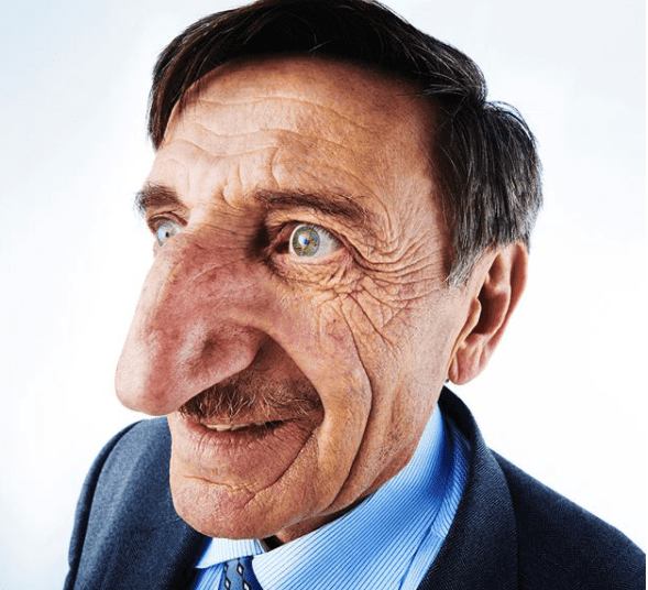 Meet Man With The Longest Nose In The World (Photos)