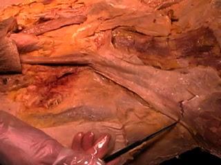 Picture from Anatomy Dissection 05 - Peritoneal Cavity video