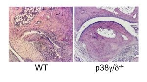 Los ratones que carecen de p38γ/δ están protegidos frente al daño articular en un modelo de artritis.