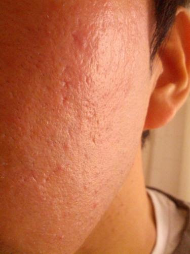 Need Recommendation For Acne Scar/orange Peel Texture ...