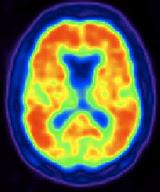 Una tomografía TEP de un cerebro