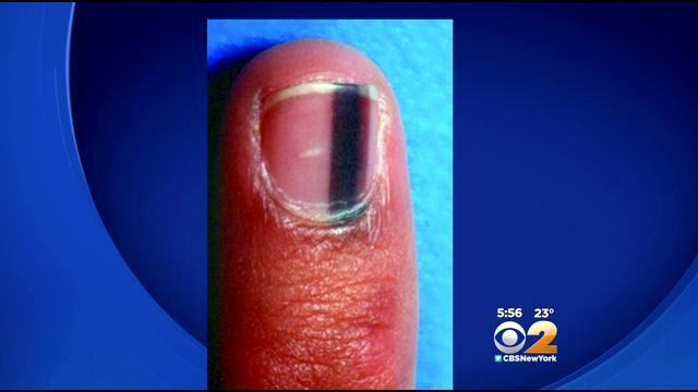 If You Can Notice This On Your Nails, GET HELP!