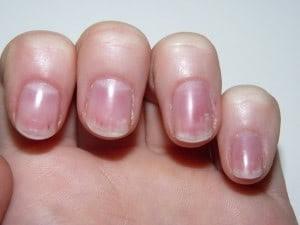 Les Taches Blanches Sur Les Ongles Reflexologie Sante