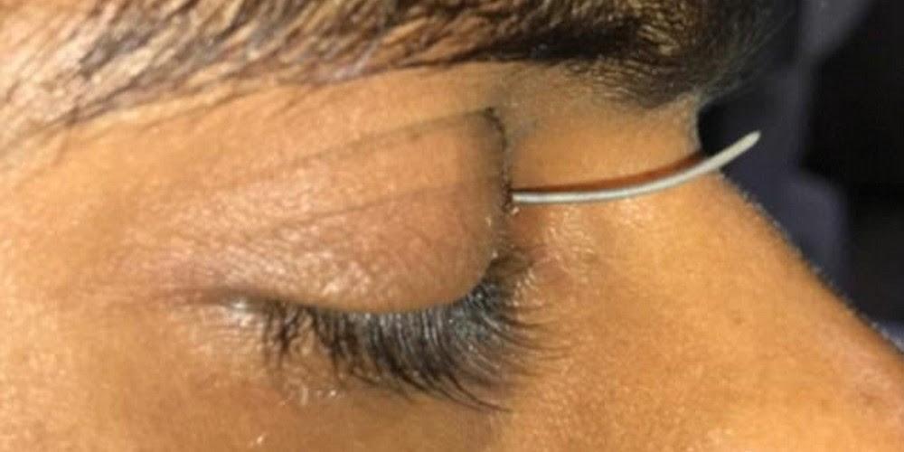 ferro-olho-3
