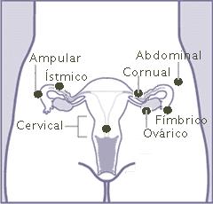 Ubicación embarazo ectópico