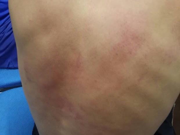 Um dos jovens teria sido agredido por golpes de ripa