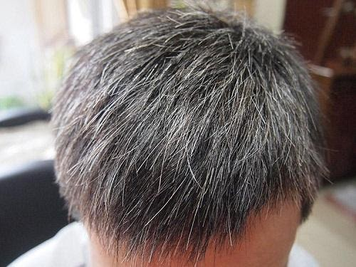 How to treat gray hair? Don't worry if you have a traditional Chinese medicine prescription
