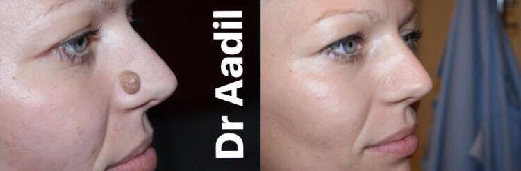 Laser Maroc Centre Aadil Chirurgie Esthétique