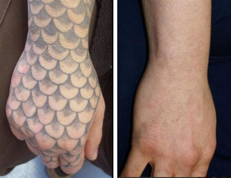 real tattoo removal lexington ky