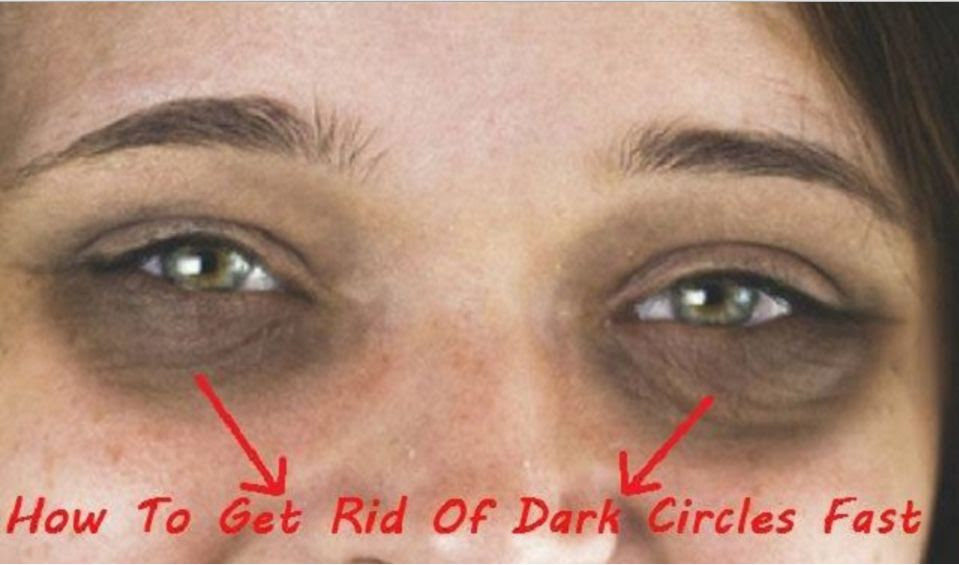Fast Removal Of The Dark Circles Under The Eyes
