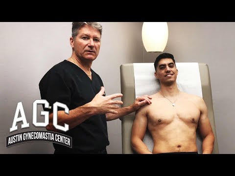 Final Steps of Gynecomastia Treatment with Carlos and Dr. Caridi