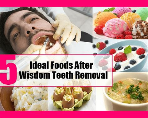 food  eat  oral surgery plastic surgery