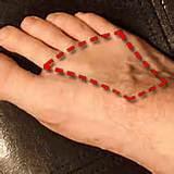 Acute Pain Top Of Foot