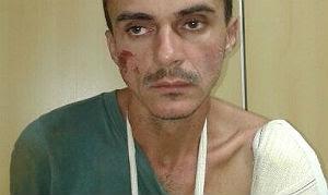 Ricardo Ramos, 35 anos, se machucou ao tentar fugir da polícia
