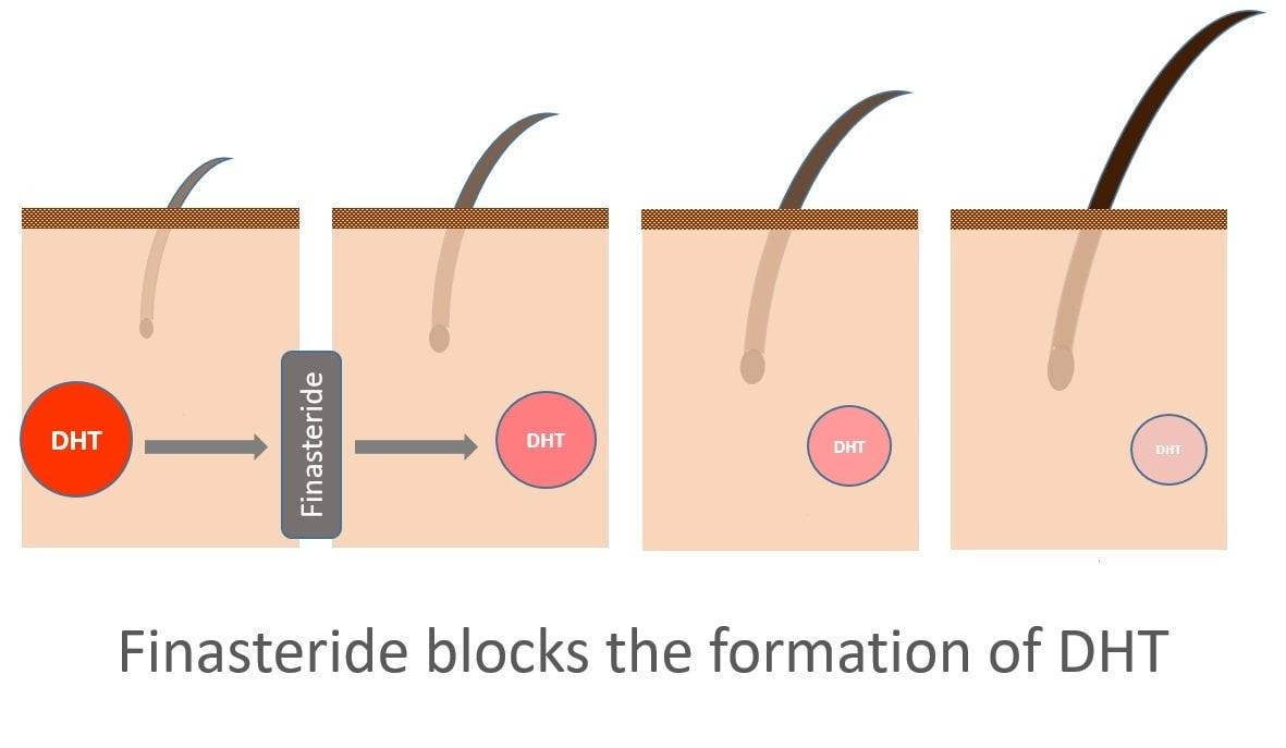 The New Possible Benefits Of Finasteride Capillus