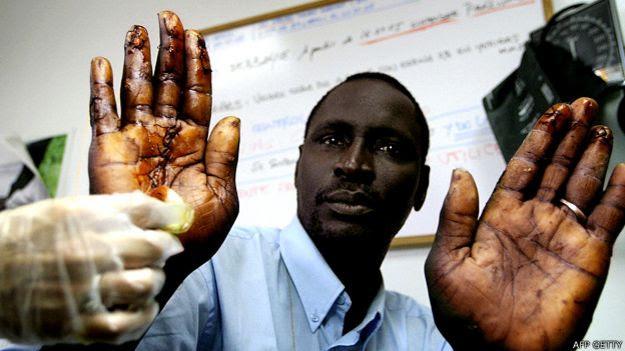 Inmigrante herido por las concertinas o alambres con cuchillas en Ceuta