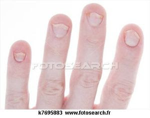 psoriasis-ongles-isole_-k7695883.jpg