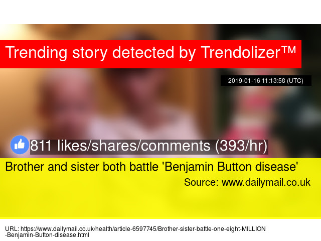 Brother And Sister Both Battle Benjamin Button Disease